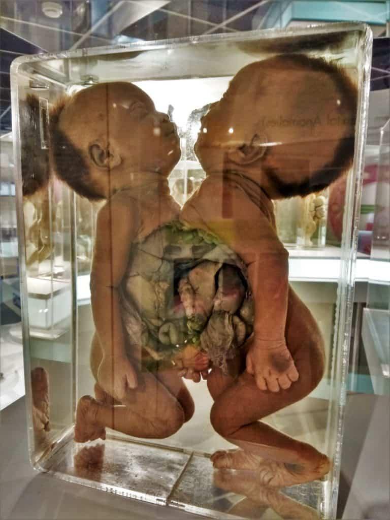 A Case of Eillis Pathological Museum