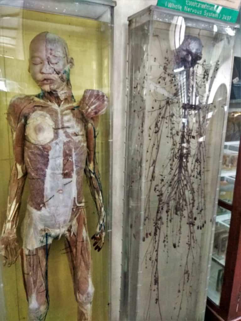 The Anatomy Museum, Siriraj Museum, Bangkok