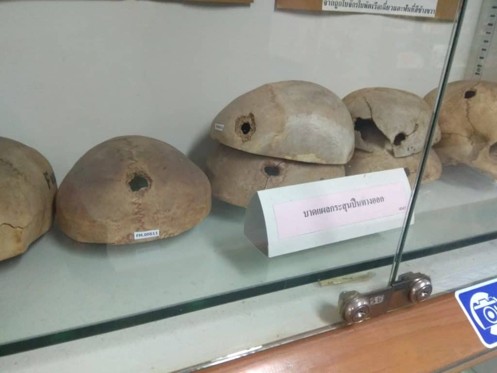 Skulls with bullets' holes at the Forensic Museum